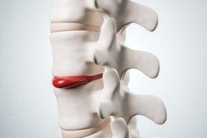 Platnička sa môže vyklenúť zo svojej pozície a tlačiť na nerv.