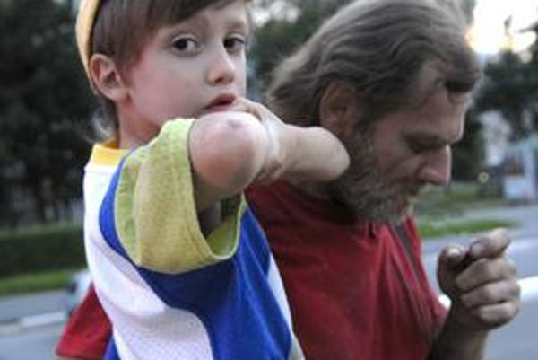 Malý Marcel. K zlomenému palcu pribudol odretý lakeť.