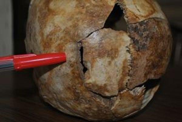 Dôkaz vraždy. Sedemcentimetrový sek v ľavej časti lebky. Čepeľ sekery tam zapadla.