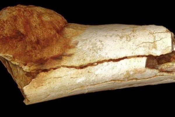 Nájdená fosília s nádorom.
