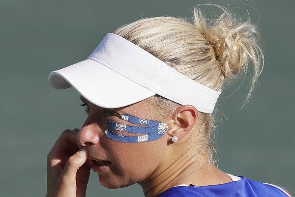 Hlaváčková má zlomený nos, na US Open nastúpi iba vo štvorhre.