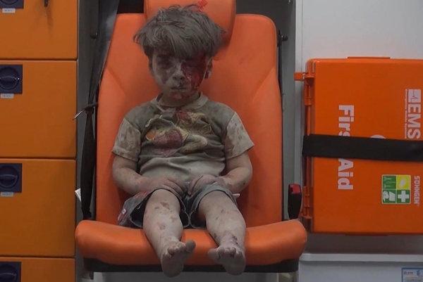 Päťročný Umrán Dakníš, ktorého zachránili z trosiek po nálete v meste Aleppo, sedí vyčerpane, celý zaprášený a so zakrvavenou tvárou v sanitke 17. augusta 2016.