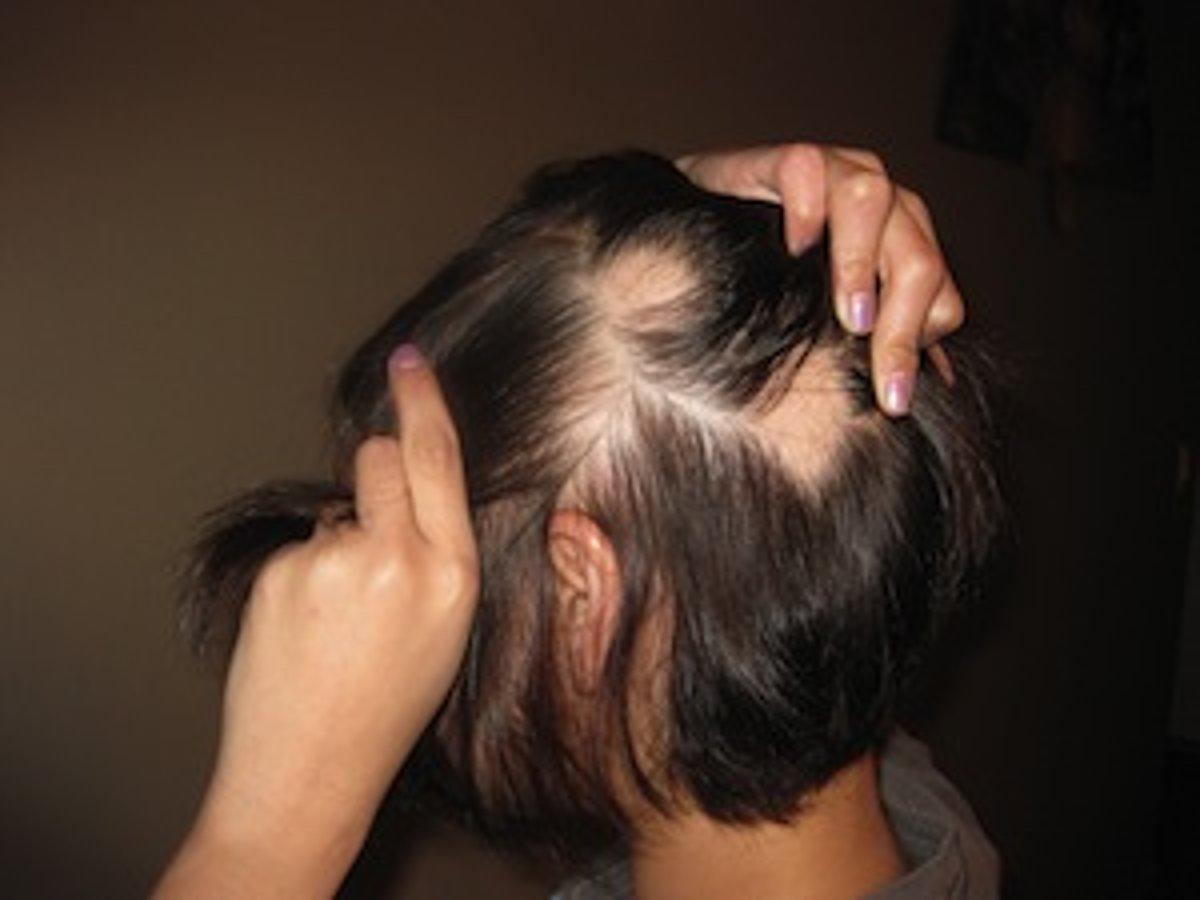 Padajú vám vlasy? - Primár SME