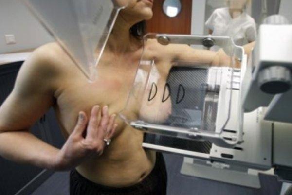 Žena na mamografii. Špeciálna prehliadka, ktorá má odhaliť nádory v prsníku.