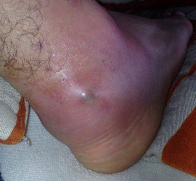 Opuchnutá noha Richarda Grznára.