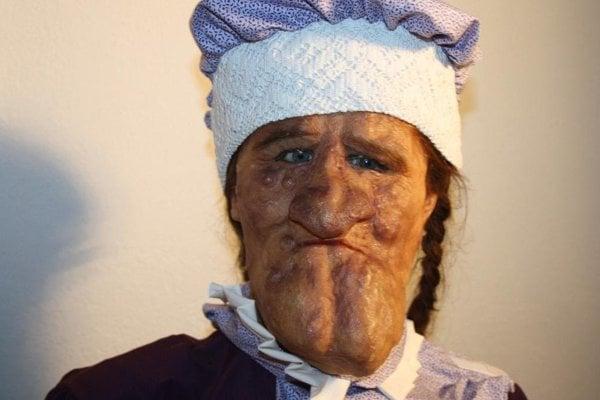Žena s tvárou mulice, ktorá sa napriek svojmu hendikepu vydala.