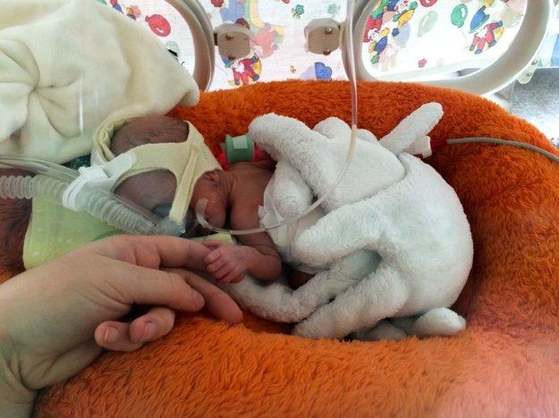 Alžbetka sa narodila s pôrodnou hmotnosťou len 600 gramov.