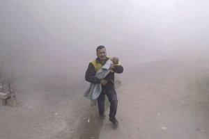 Jeden z dobrovoľných záchranárov nesie svojho zraneného syna  na predmestí Damasku.