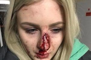 Chlapec, ktorý napadol Edinu Váradyovú, dostal len pokutu 1500 eur.