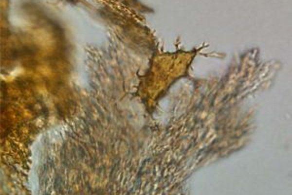 Kostná bunka (osteocyt) zavesená na tzv. filipódiách v bielej vláknitej matrici, tvorenej prevažne bielkovinou kolagénom. Získané demineralizáciou kosti dinosaura zo skupiny hadrosaurov, žijúceho na území dnešného štátu USA Montana pred 80 miliónmi rokov.