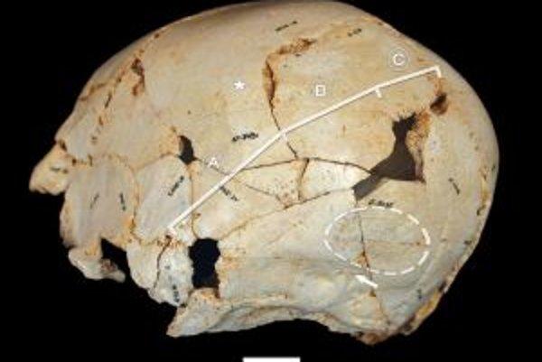 Poskladaná lebka číslo 14. Biele úsečky označené písmenami znázorňujú priebeh švu, o ktorý ide. Časť A zrástla úplne a celkom hladko, časť B tiež, ale šev stále vidno z vonkajšej strany lebky, časť C, takzvaná lambdoidná, zostala otvorená.
