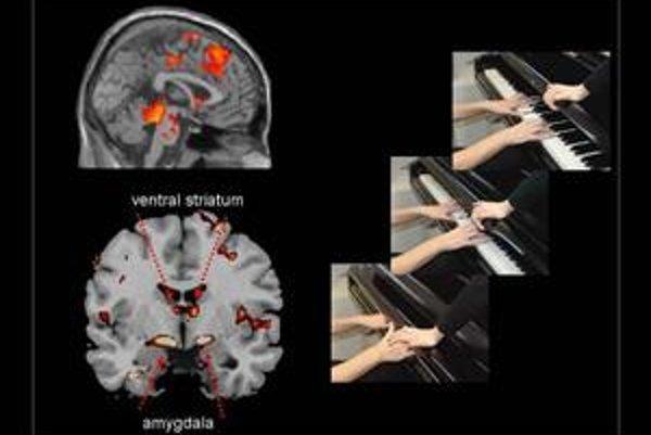 Vľavo je aktivácia odmeňovacích mozgových centier agresívnych chlapcov pri pohľade na bolesť iného, vpravo jedna zo zinscenovaných situácií na pokusných videosekvenciách.