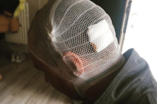 Muž z Humenného napadol manželov v ich dome, spôsobil im zranenia na hlave.