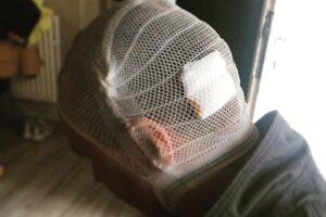 Majiteľ domu má na hlave ranu, ktorú mu museli ošetriť v nemocnici.