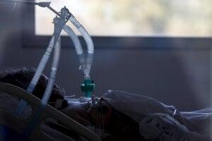 Pacient napojený na umelú pľúcnu ventiláciu.