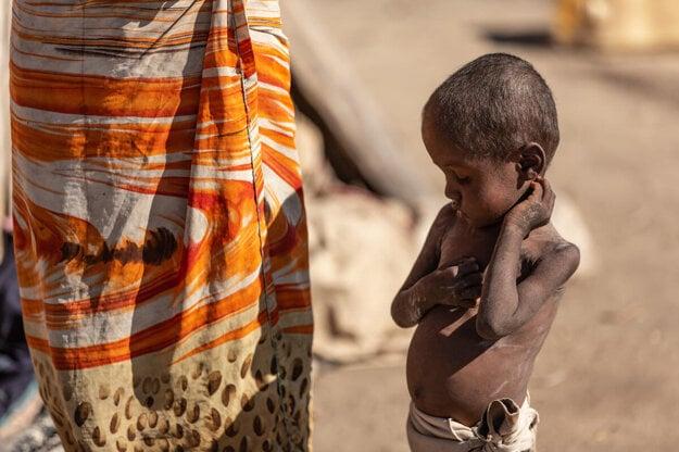 Trojročný Zafimana je jedným z detí, ktoré trpia podvýživou v dedine  Fenohaivo na Madagaskare.