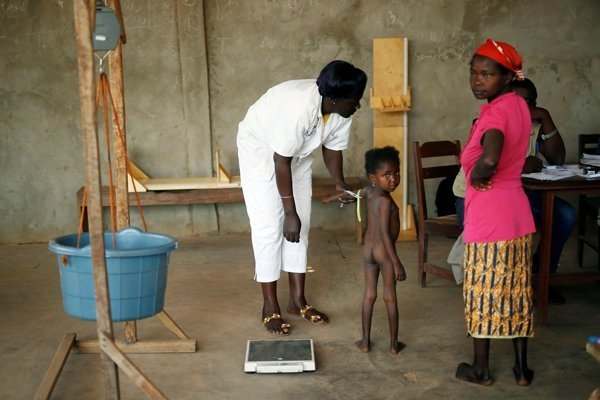 A child is weighed and measured by nurses in Bangui, Central African Republic.