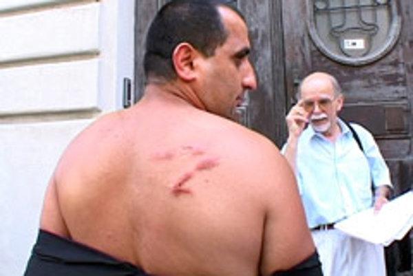 Peter Sendrei displays his injuries.