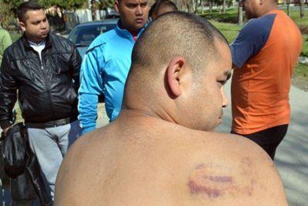 A man from Roma settlement Vrbnica shows his bruises allegedly caused by police.