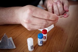 HIV test set