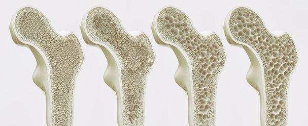 Osteoporóza a jej štádiá