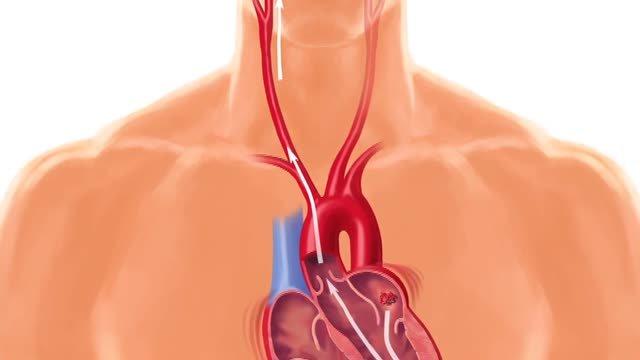 Srdce môže stáť aj za vznikom porážky